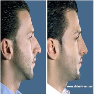 nose surgey