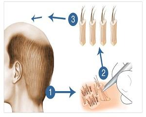 زراعة الشعر بتقنية DHI