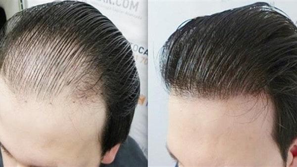 زراعة شعر في ایران