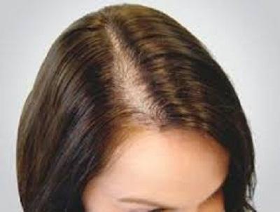تساقط الشعر عند المرأة