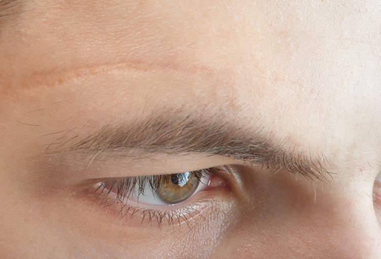 ندبات الوجه