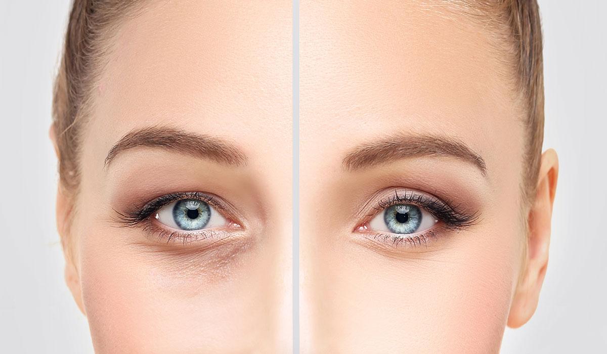 تجميل العيون بدون جراحة