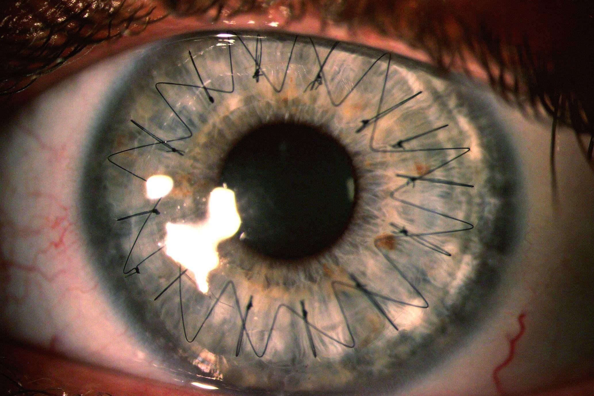 زراعة العدسات للعيون