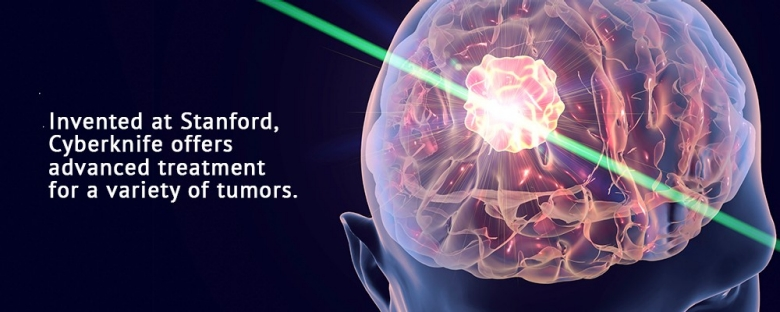 CyberKnife, السايبرنایف, علاج السرطان, علاج الأورام, جراحة الأورام, الأنسجة السرطانية, تلف الأنسجة