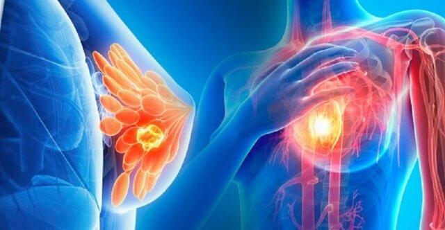 تشخیص سرطان الثدی - الفحوصات