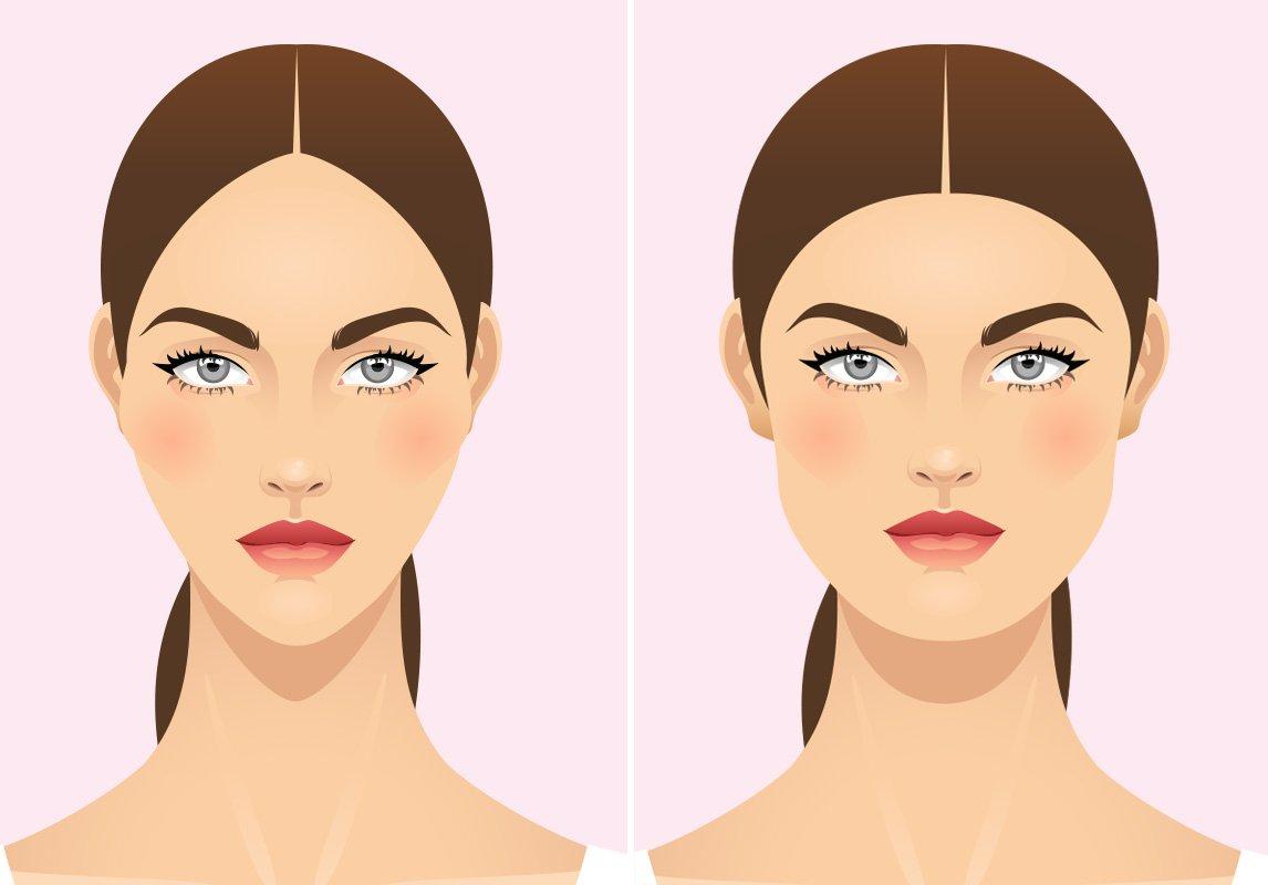 شفط الدهون الوجه