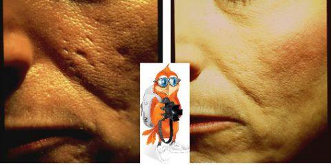علاج الندوب الجلدية