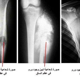 العلاج الكيميائي فی سرطان العظام
