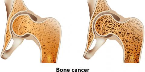 العملية الجراحية فی سرطان العظام