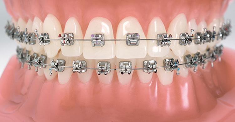 تقويم الأسنان سیاحت ایران علاج فی1 ایران 00989358372018