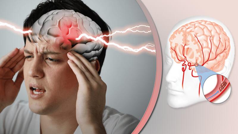 السکتة الدماغیة - تشخیصها