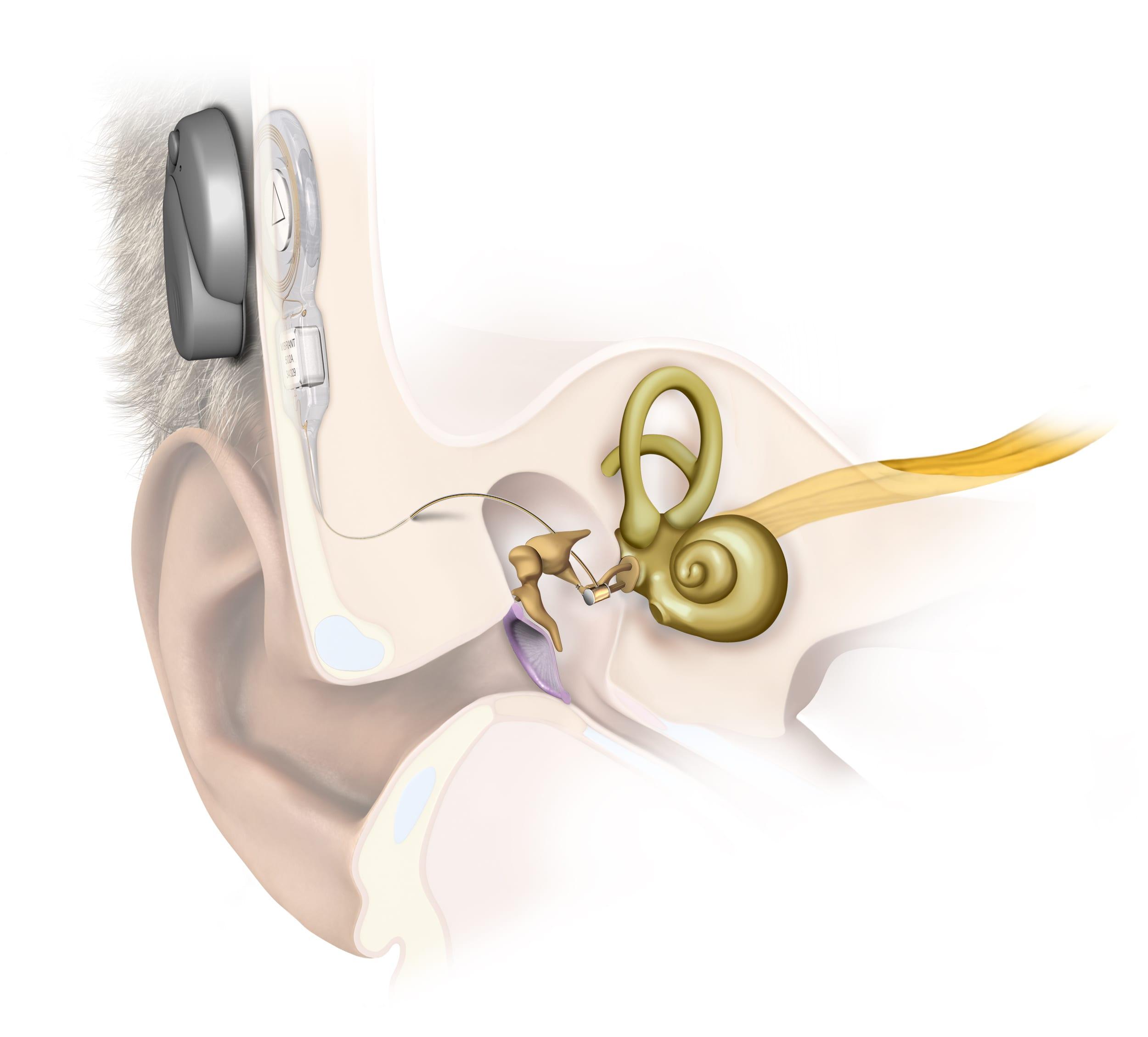 زراعة قوقعة الأذن