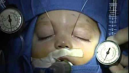 انسداد القنوات الدمعیة - للأطفال