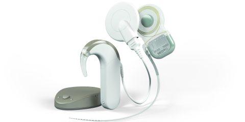 قوقعة الأذن - علاجه